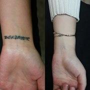 Удаление татуировок и татуажа в Алматы